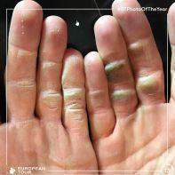 Alex Noren Hands